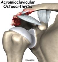shoulder_acromioclavicular_arthrosis_intro01