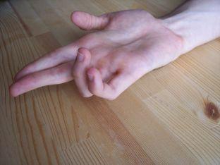 1024px-Ulnar_claw_hand