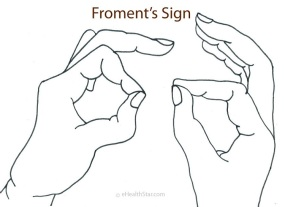 Froments-Sign-Pictures-1